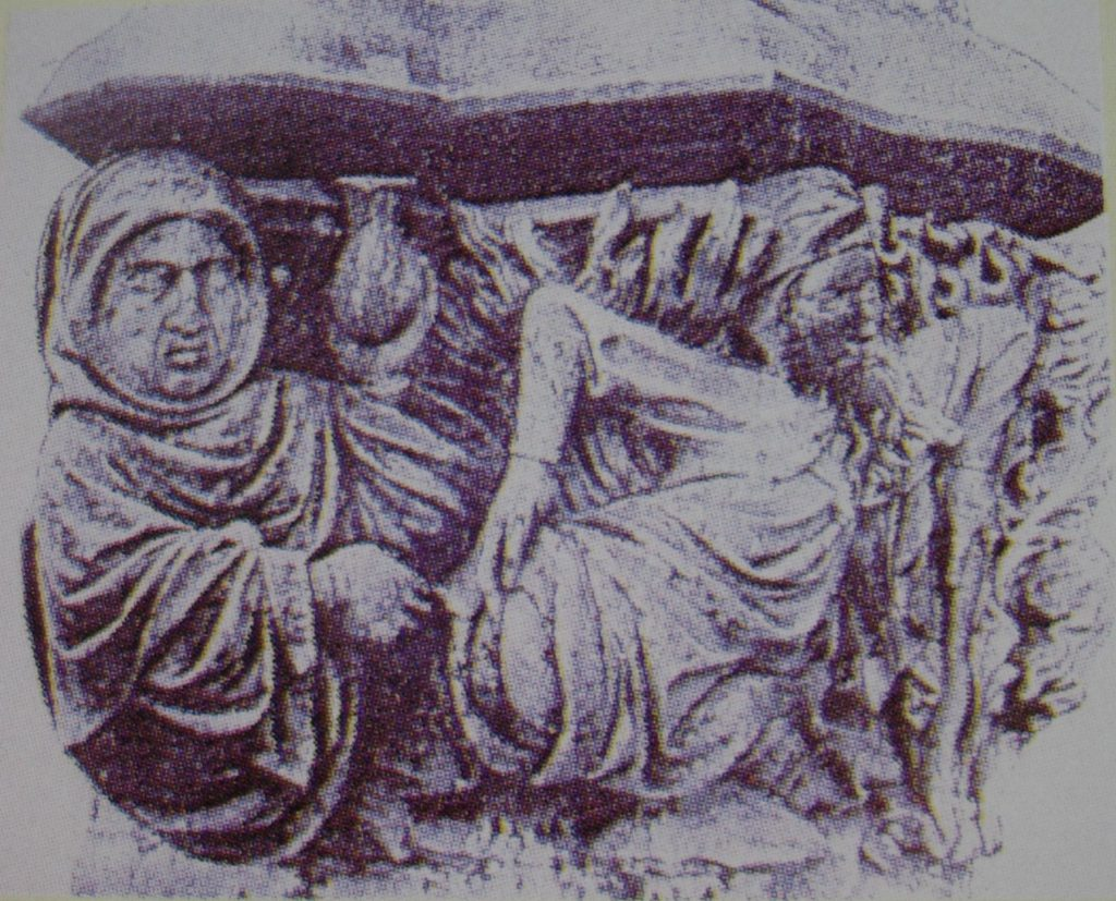2.-Cirujano tratando a Juan IIº de Aragón. Capitel Monasterio de Poblet.