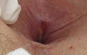 Fisura anal tratada por el médico proctólogo Dr. Tomás J. Paco Buendía