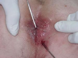Fístula perianal anterior
